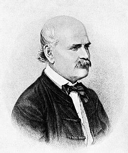 איגנץ זמלווייס